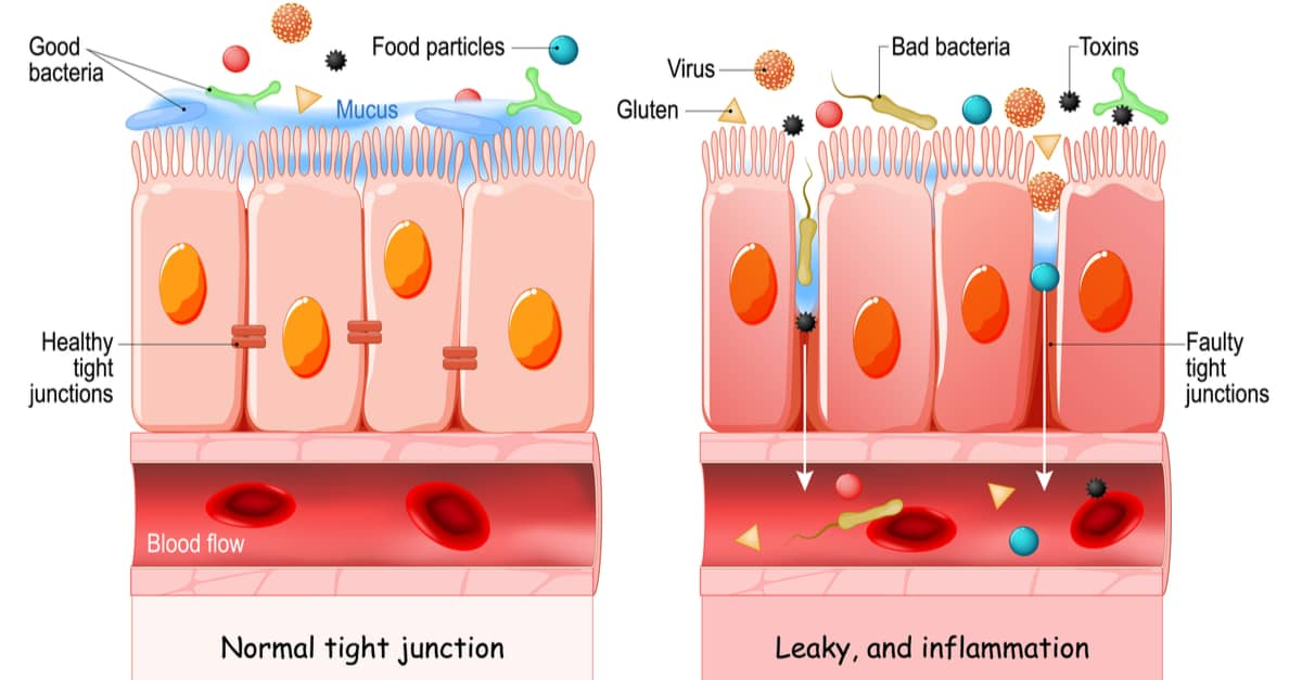 Leaky gut syndrome infographic showing the difference between healthy cells and inflamed intestinal cells